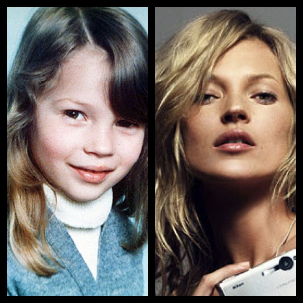 Celebrity Nose Jobs Before And After Pictures