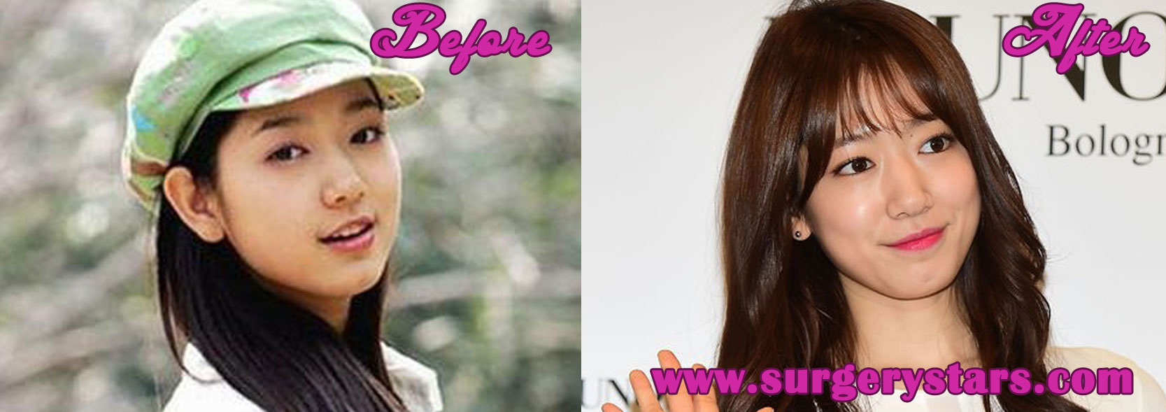 Park Shin Hye Plastic Surgery Before And After Photos