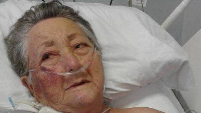 Idosa de 78 anos é agredida em UTI de hospital de São Paulo