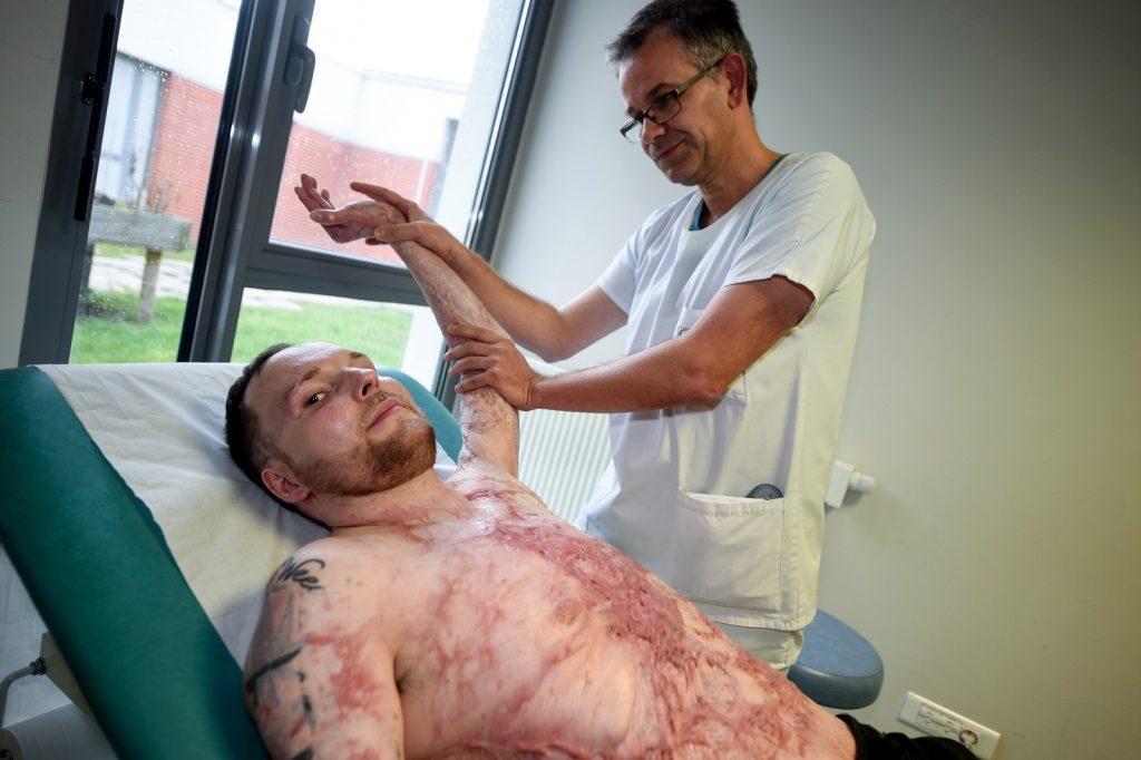 Homem sobrevive graças a transplante de pele do irmão gêmeo