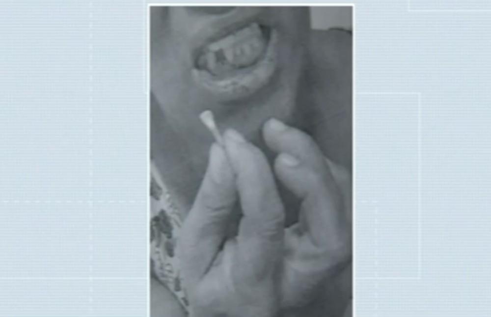 Ex-marido é preso após arrancar dente de mulher com socos no rosto