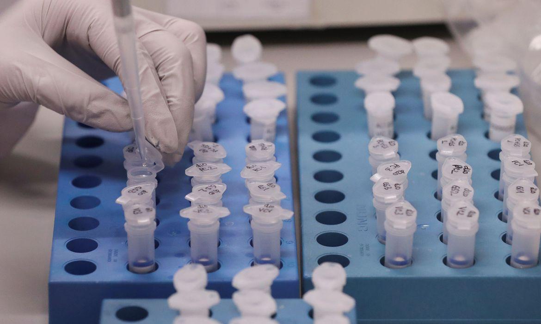 Laboratório descarta morte por coronavírus em Brasília anunciado pela Secretaria de Saúde do DF
