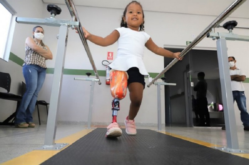 Paciente de 3 anos ganha primeira prótese infantil da Oficina Ortopédica de Araguaína