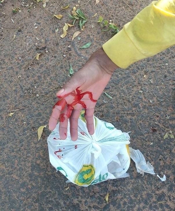 """""""A gente pede consideração"""", relata coletor de lixo araguainense que se cortou com vidro"""