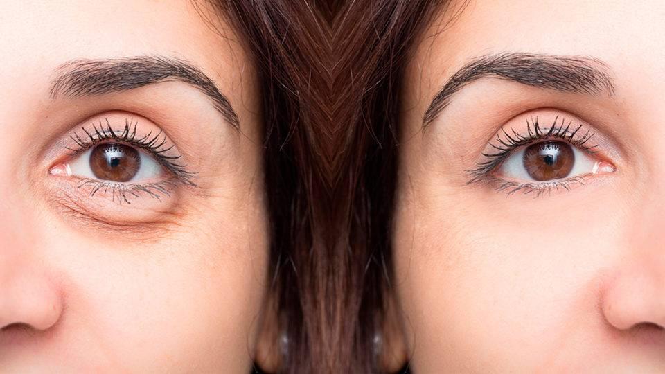 Saúde e aparência dos olhos andam juntas com a blefaroplastia