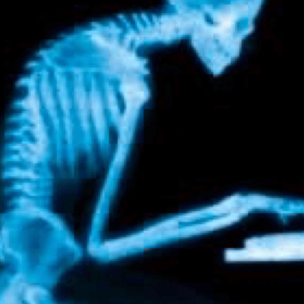 Sitting Posture Causes Back and Neck Pain