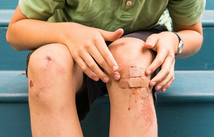 Man knee injury | Everyday Uses For Your Emergency Survival Kit