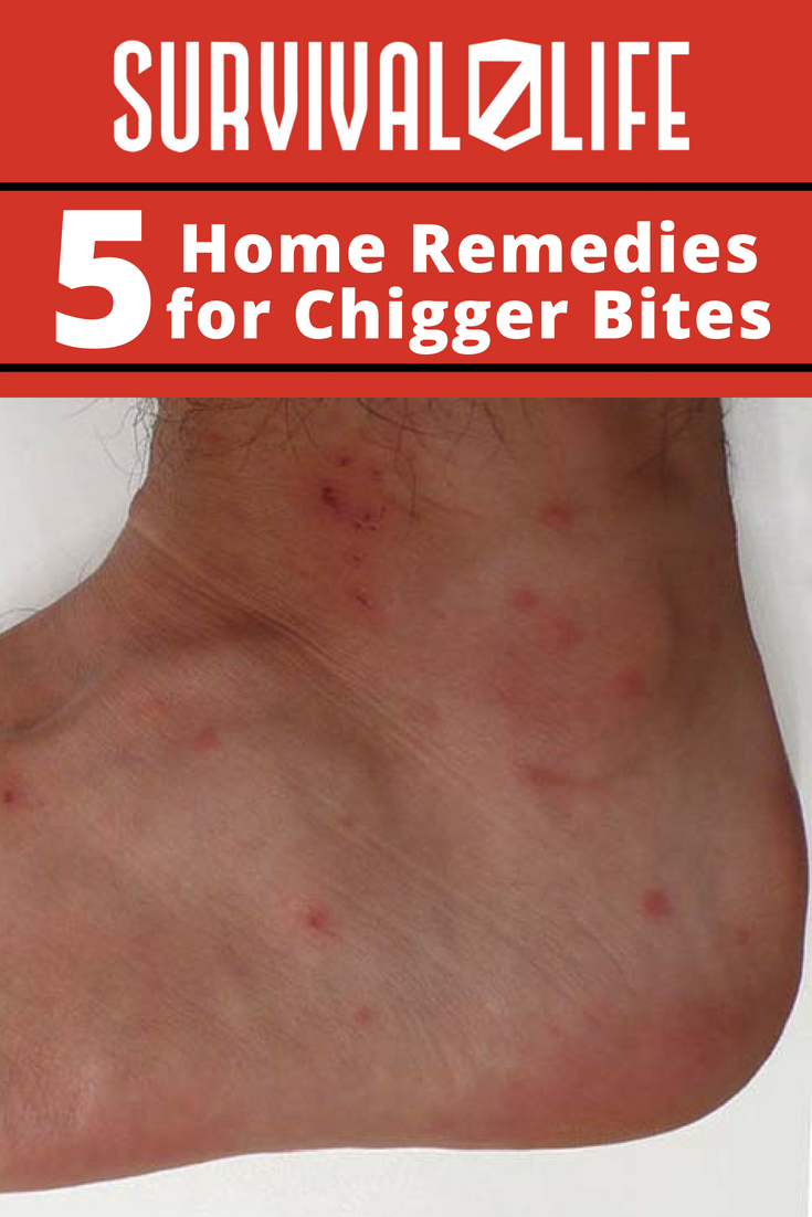 Home Remedies For Chigger Bites | https://survivallife.com/5-home-remedies-for-chigger-bites/