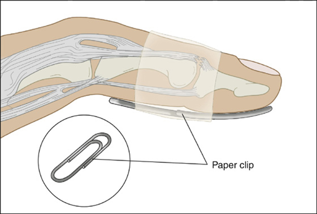 Splint | Survival Uses Of Paper Clips