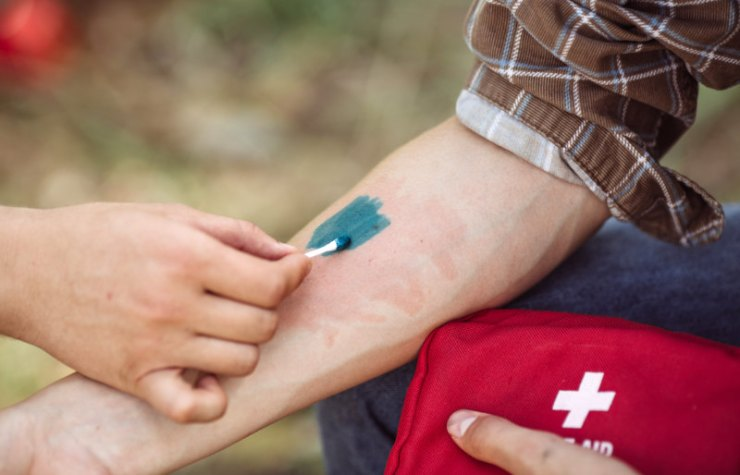 person treating his friends wound medicine | wilderness first aid