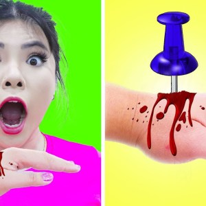 7 CRAZY REMEDIES & LIFE HACKS TO SURVIVE | EMERGENCY TIPS, TRICKS & FUNNY SITUATION BY CRAFTY HACKS