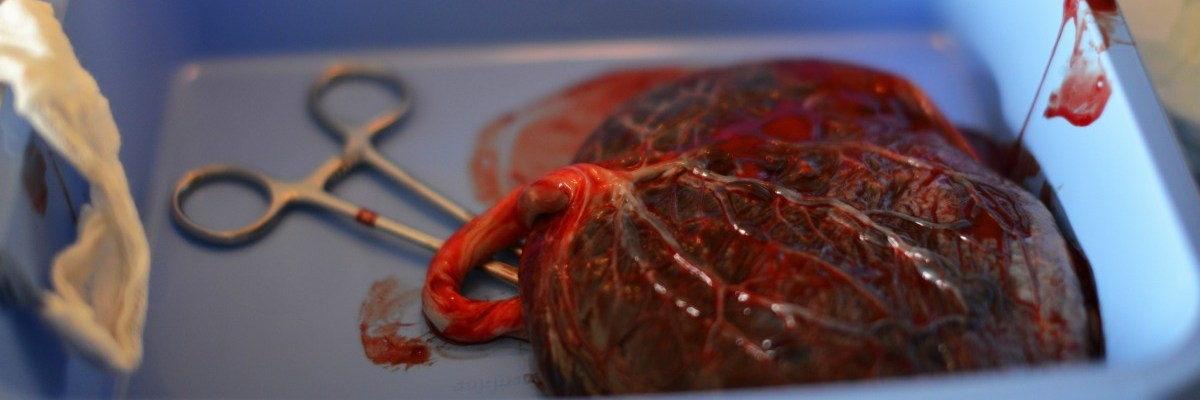 Why You Should Consider Placental Encapsulation