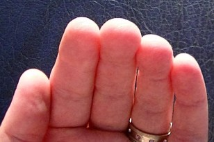 6-days-finger-tip-callus