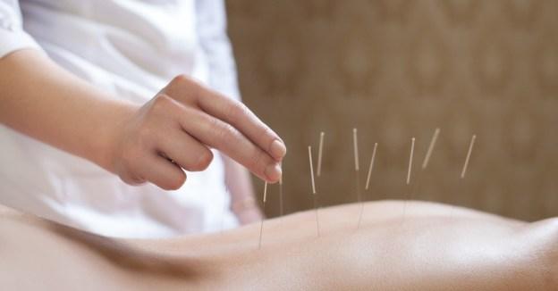 Akupunktur – die Story (II)