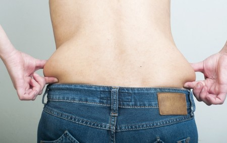 Muffin-Top-Flanks-PureCryo-Fat-Freezing-Sussex-Laser-Lipo