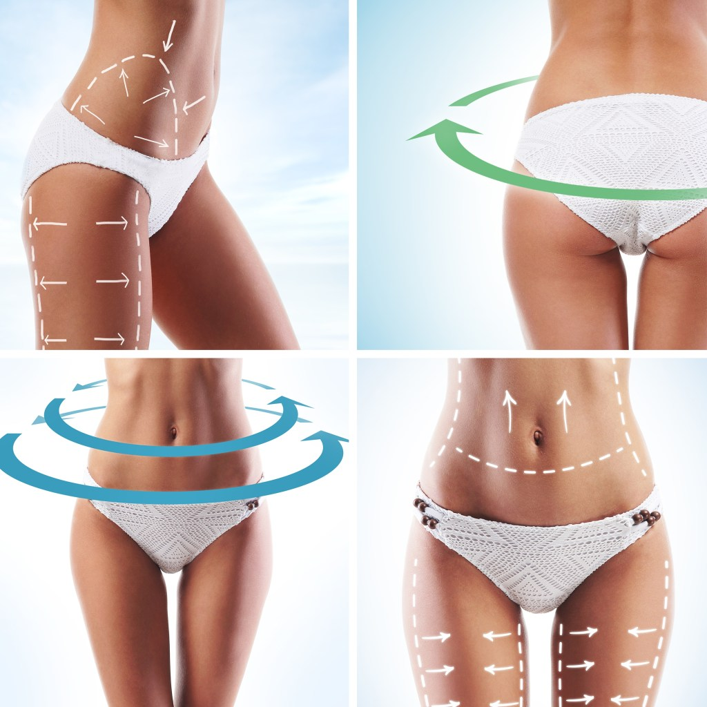 Sussex-Laser-Lipo-Cellulite-Inch-Loss-Fat-Freezing-