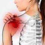 Характеристика плечелопаточного периартроза – полный обзор болезни