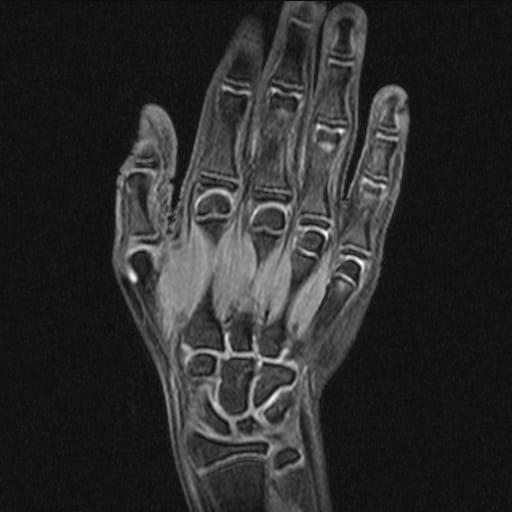 МРТ лучезапястного сустава и кисти руки: фото снимков