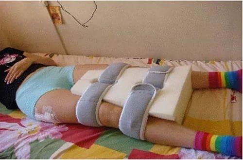 Боли в пояснице после эндопротезирования тазобедренного сустава. Боли в бедре после эндопротезирования тазобедренного сустава