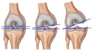 disecarea osteochondritei genunchiului tratament comun pentru pompă