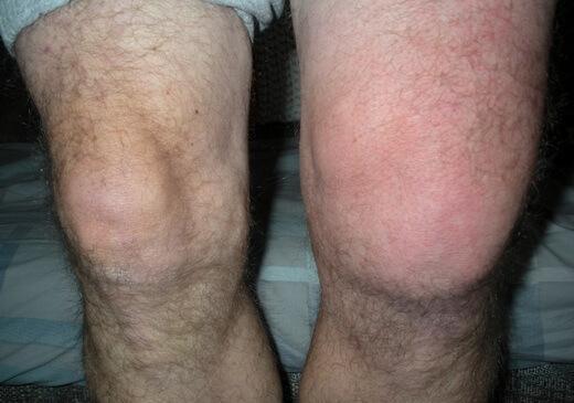 vatten i knät symtom