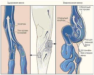 cum se utilizează un bandaj în videoclipuri varicoase