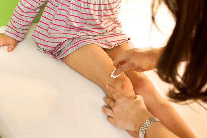 Что делать если распухло и отекло колено у ребенка