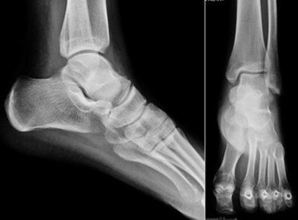 a boka kenőcsének deformáló artrózisa)