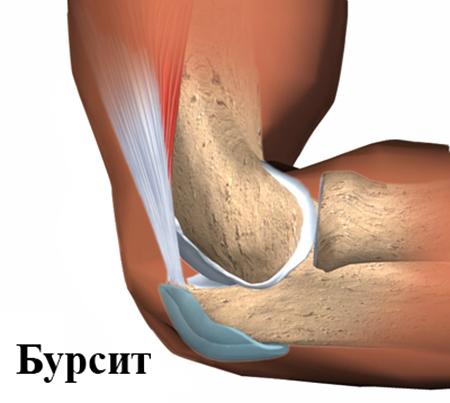 Бурсит локтевого сустава: симптомы и лечение (с фото ...