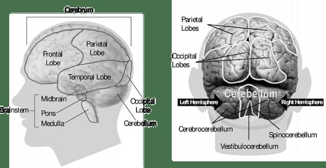 trauma en de hersenen