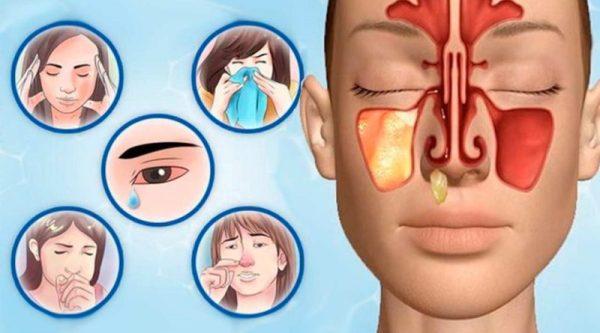 Лечение гайморита прополисом отзывы врачей рецепты и