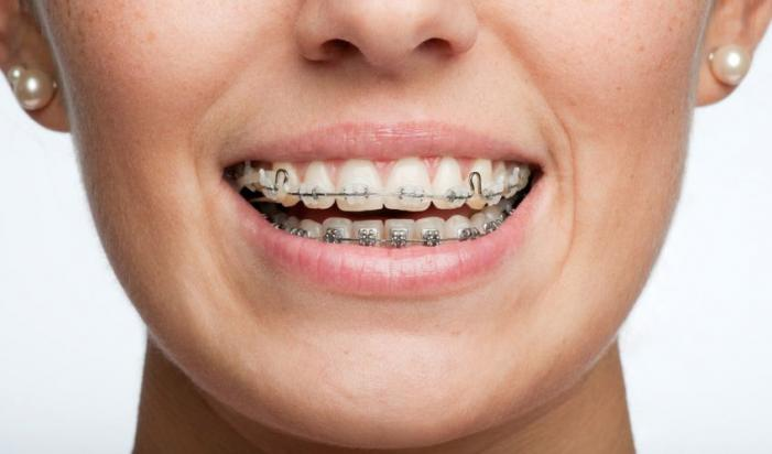 Ortodontas