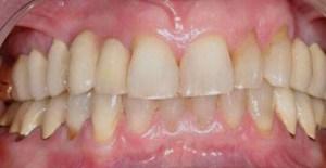 Parodontozės gydymas