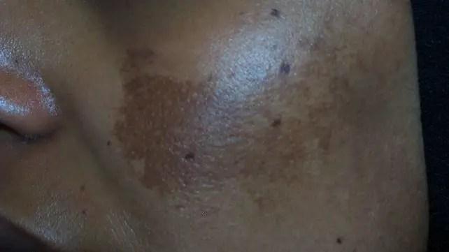 skin irritation on the face - Beauty Benefits of Aloe Vera