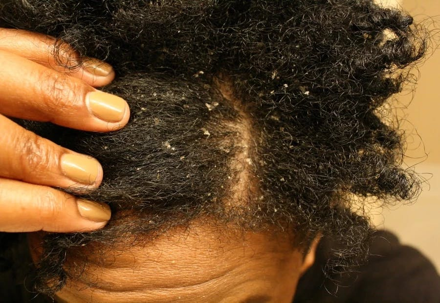 5 Super Effective Home Remedies to Get Rid of Dandruff