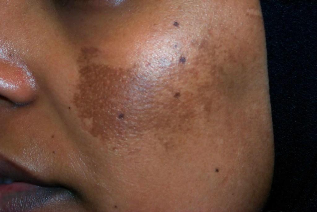 melasma on a lady's face