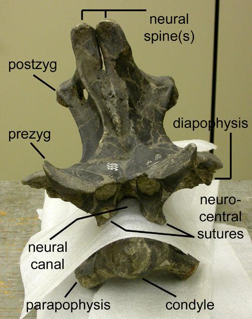 cm-555-c6-with-spine-anterior-500.jpg