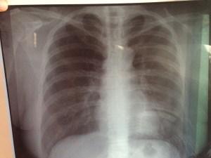 sc_kimis-x-rays