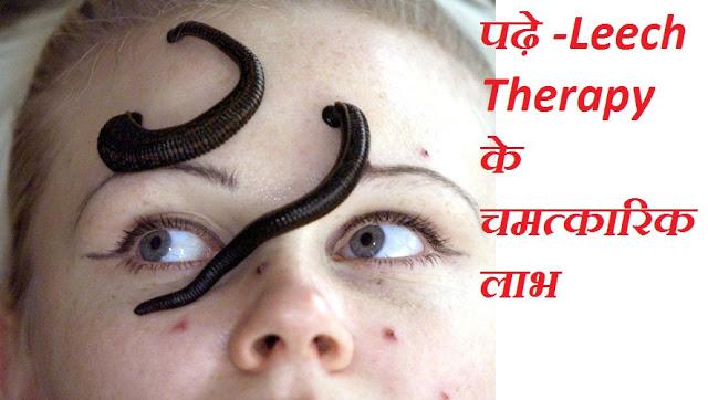 http://www.swadeshiupchar.in/2017/05/leech-therapy-benefits-in-hindi.html