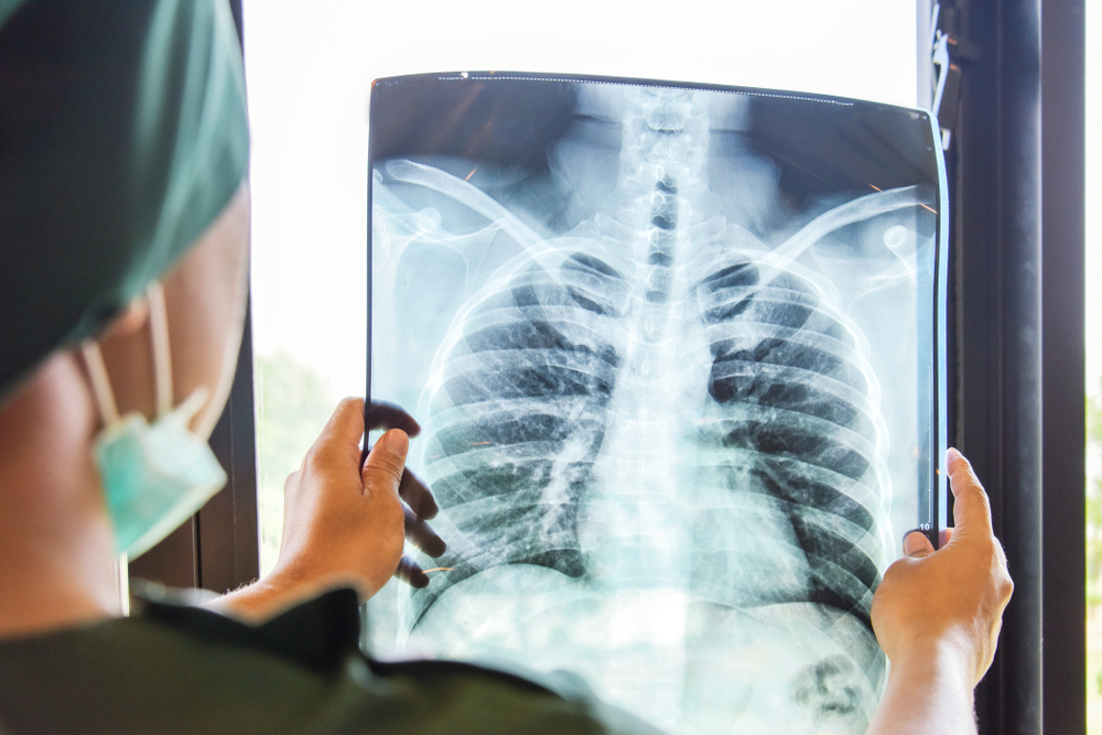 Person checking x-ray results