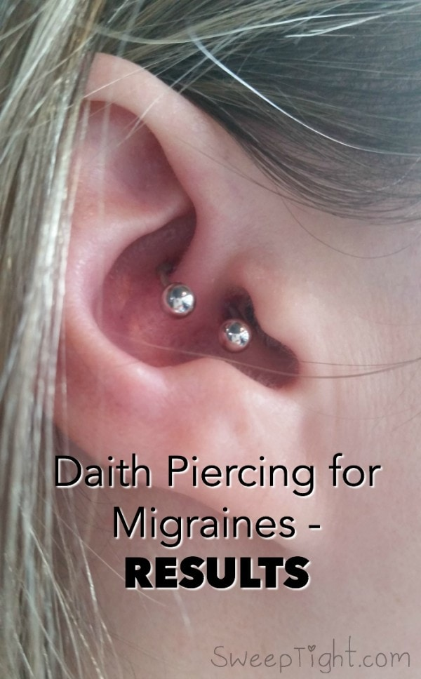 One Month Of Results After Ear Piercing For Migraines