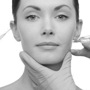 rellenos-faciales-madrid ácido hialurónico