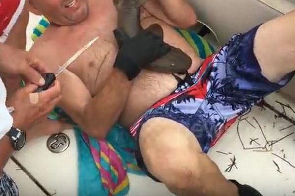 【閲覧注意】人間のお腹に食いつき離さない、小さなサメが獰猛すぎる