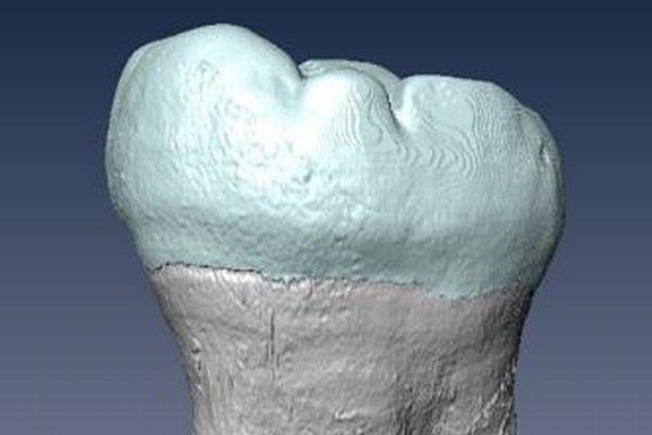 ホモ・サピエンスとデニソワ人が異種交配、奥歯から形態学的な証拠を初めて発見
