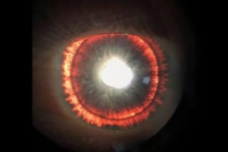 目の中が光り輝く男性、虹彩が異常をきたす珍しい症例が報告される
