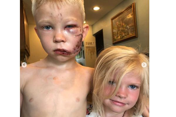 勇敢な少年、90針の怪我を負いながら、妹を猛犬から守る
