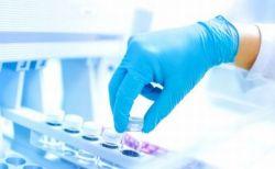 オックスフォード大の新型コロナ・ワクチン、被験者が副作用の症状について語る