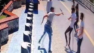 صورة تلقى شاب سوري طعنة بسكين أصابته إصابة خطرة من شاب تركي بسبب طلب سيجارة