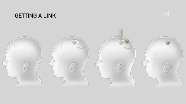 8711771 2848 1600 14 8 - حين تحكمنا الخوارزميات.. قصة ربط الدماغ البشري بالحواسيب