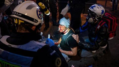 1606637682 9655130 2836 1597 10 2 - عنف الشرطة الفرنسية.. ضرب مصور سوري خلال تغطية مظاهرات باريس